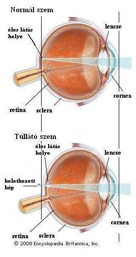látás plusz mindkét szemében