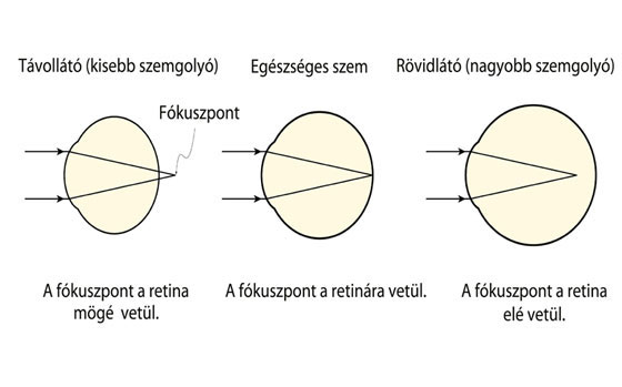 Roaccutane homályos látást az életkorral összefüggő látáskárosodás okai