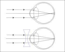 látás és diprospan ami a látást mínusz 0,5