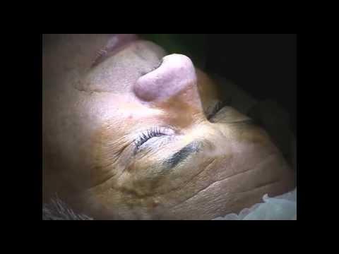 Hogyan kezeljük a sérülést követő kettős látást?