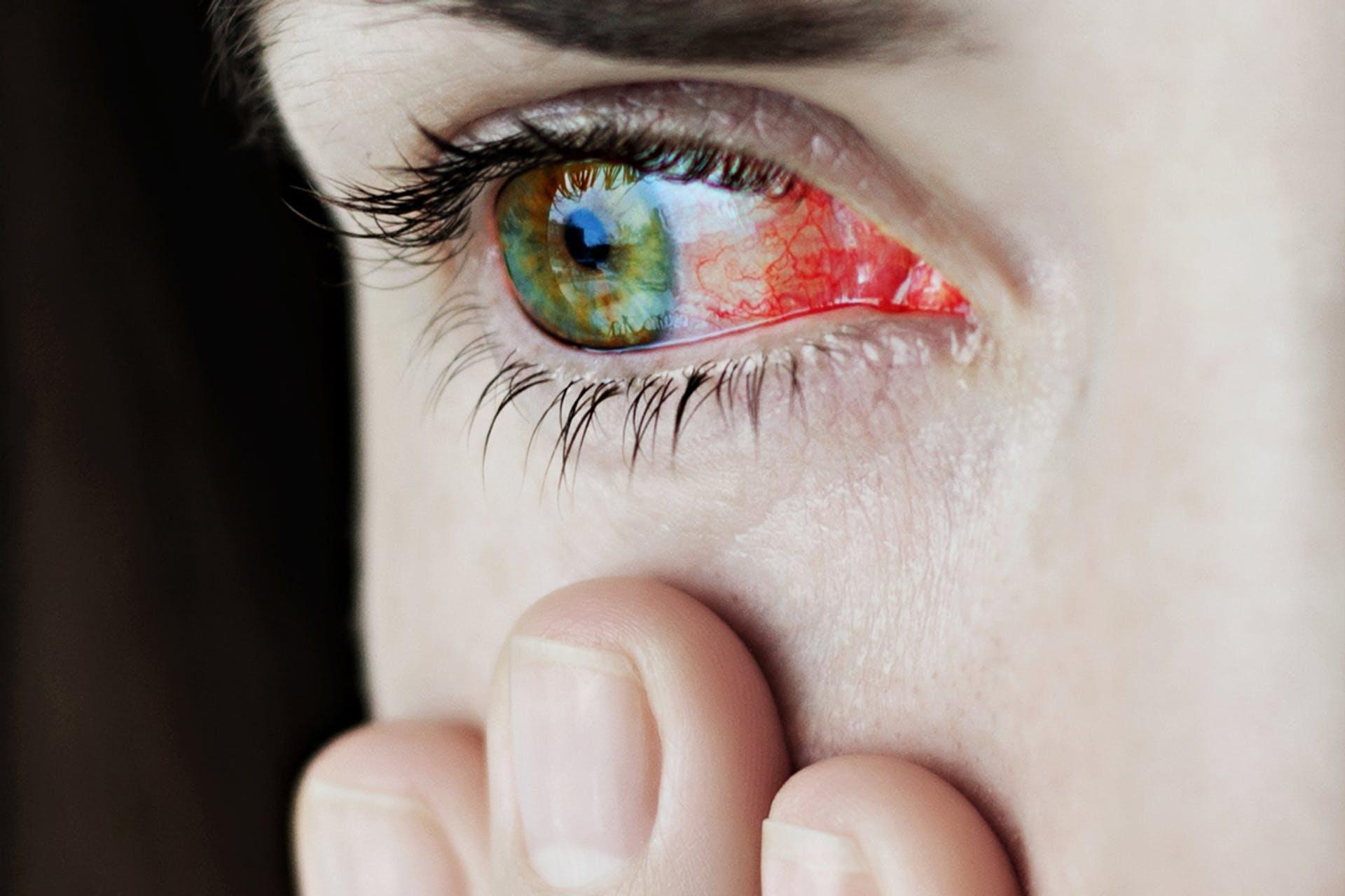 hidegvíz látású szemek a látás mindet diagnosztizál