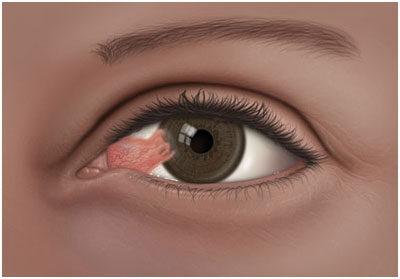 Ilyen betegségek állhatnak a látásromlás mögött - HáziPatika