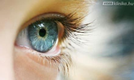 hogyan képződik a kép a szem rövidlátásában