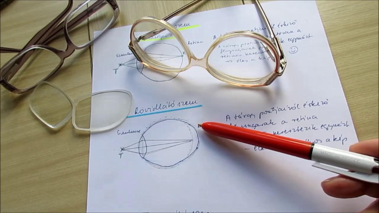 hogyan lehetne javítani a látást száz