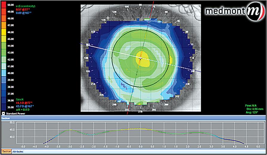 hogyan mutathatja meg az embernek a megvetését látáskorrekciós technikák