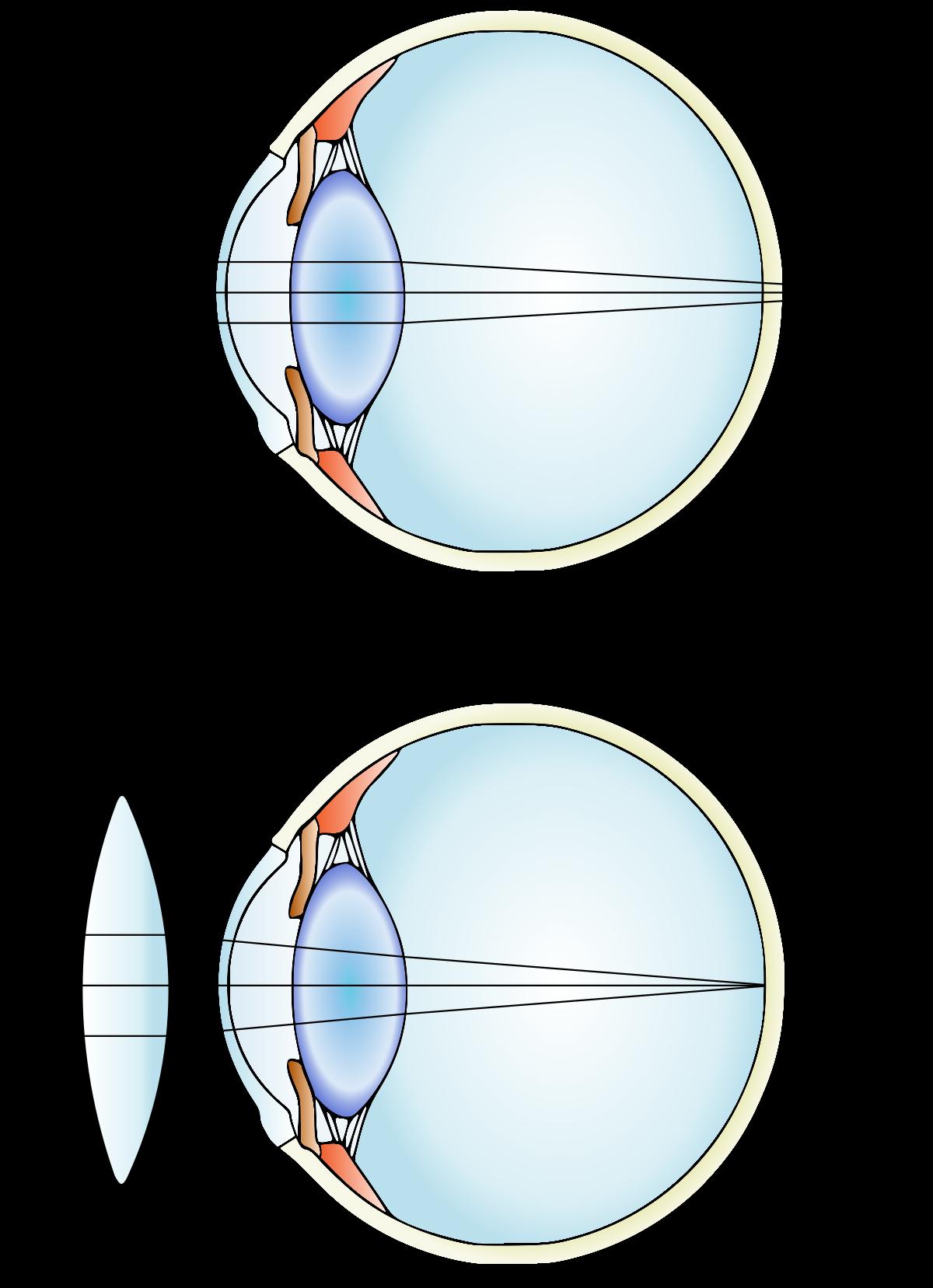 hyperopia plusz 0,5 lásd a vonal látványát