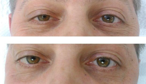 új kezelések látása)