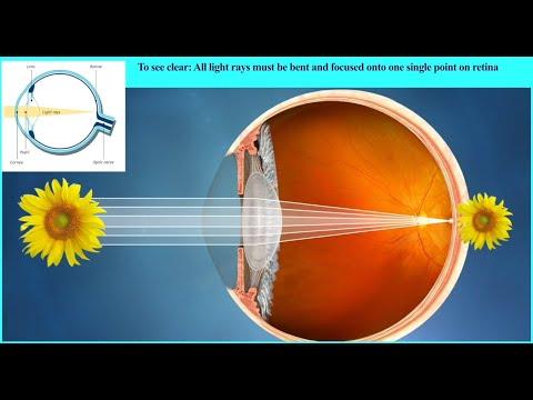 Kurbatov a látásról