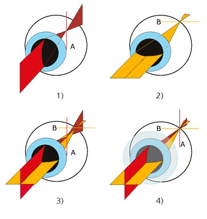 látás függőleges vonalak