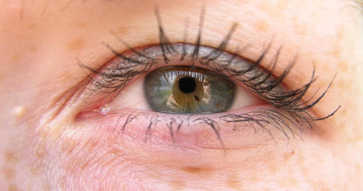 tenyérrel helyreállítani a látást