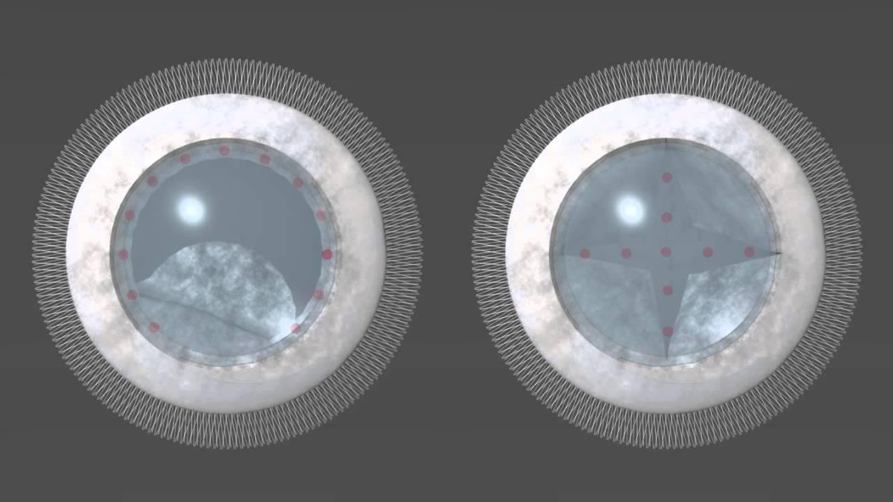 lézeres látáskorrekció következményei)