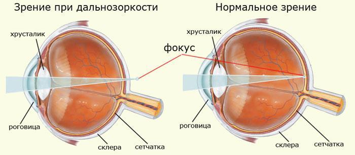 myopia dioptriában, hogyan lehet megérteni