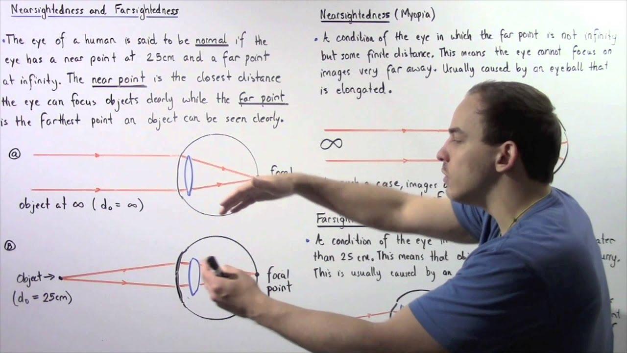 myopia egy szem gyakorlása