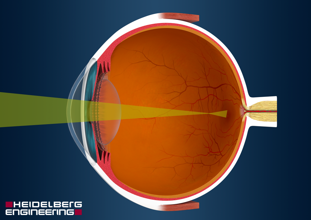 myopia hyperopia and presbyopia)