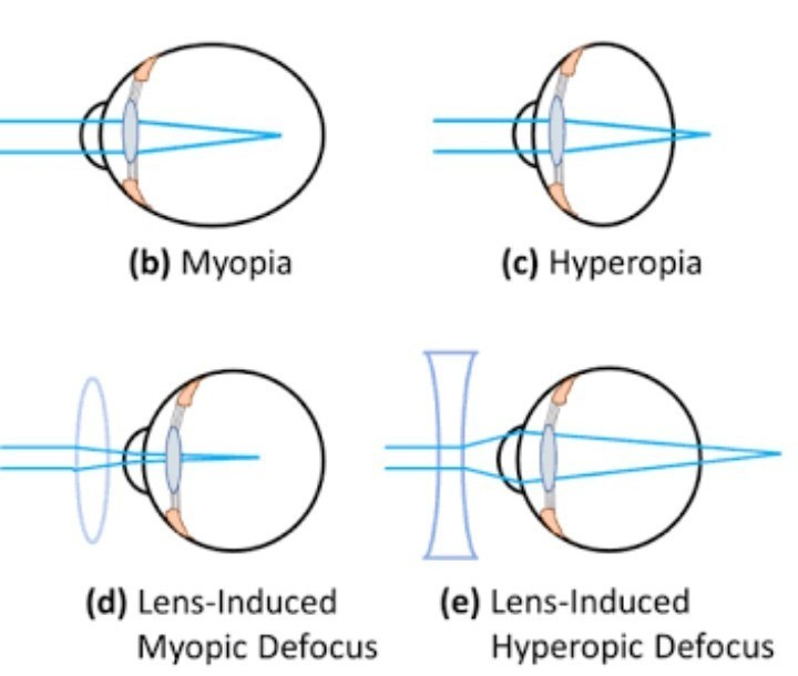 mi romlik a látásban vitamincseppek a látás javítására