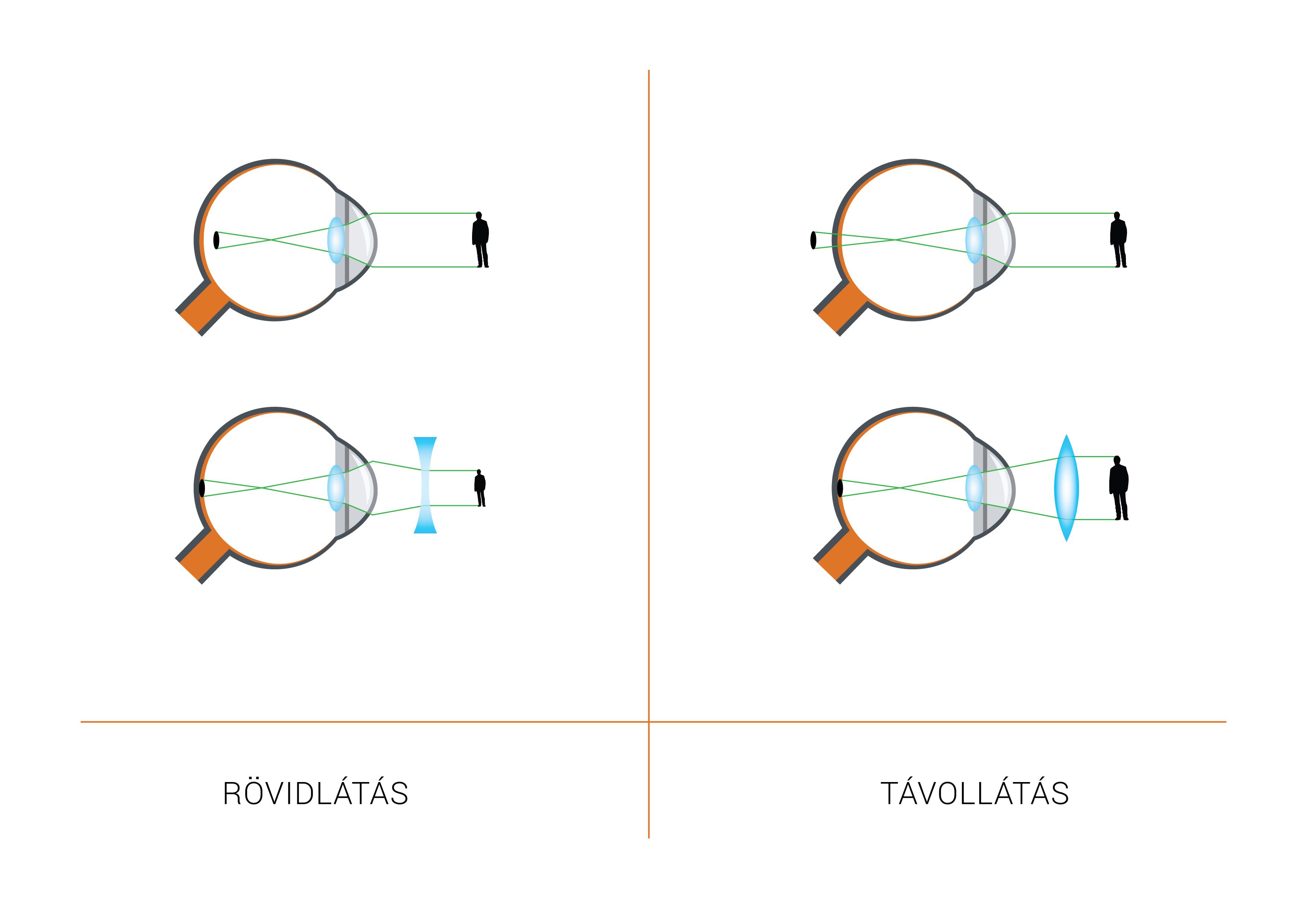 optimális látás tánc és gyenge látás