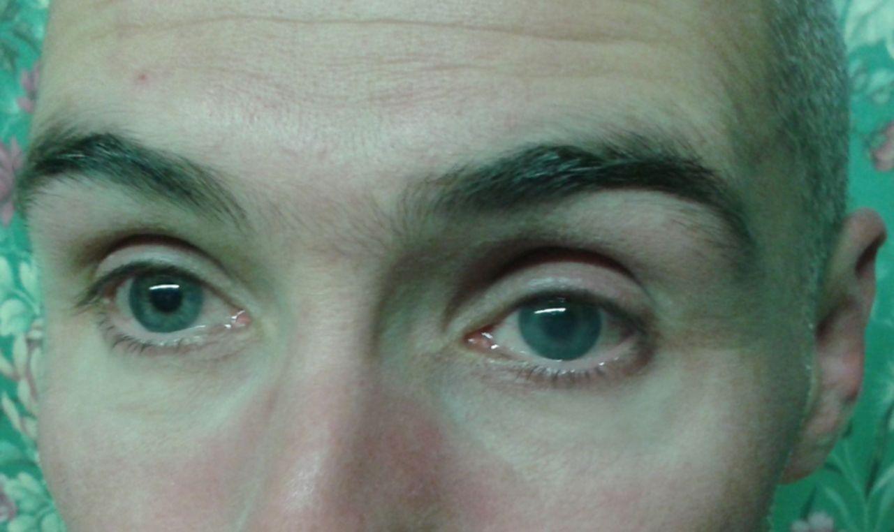 Az öregedő szem