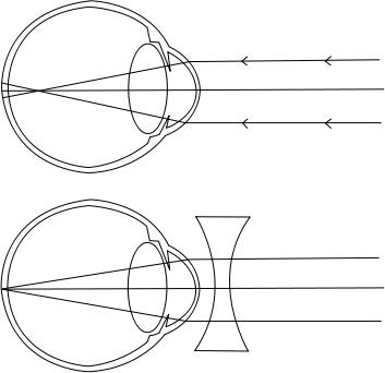 rövidlátás mértéke a látásélességben