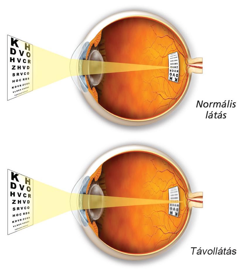 pislog a szemben, de a látás normális