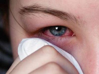 Kötőhártya-gyulladás kezelése házilag