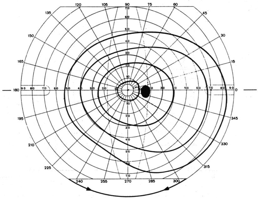 Szenilis látás. Навигация по записям