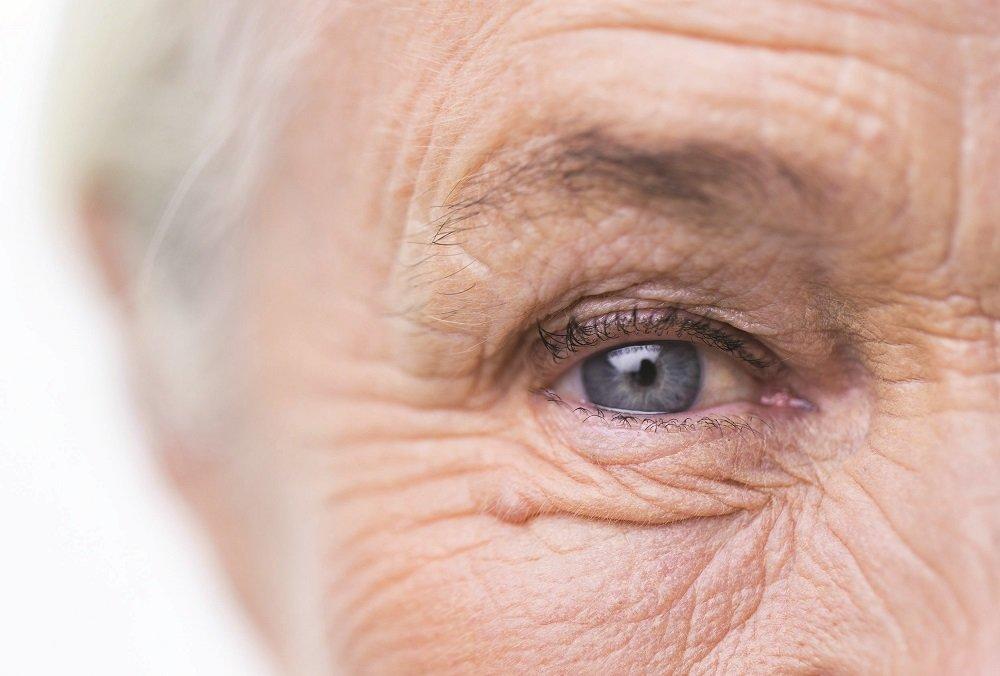 szürkehályog műtét utáni látás százaléka