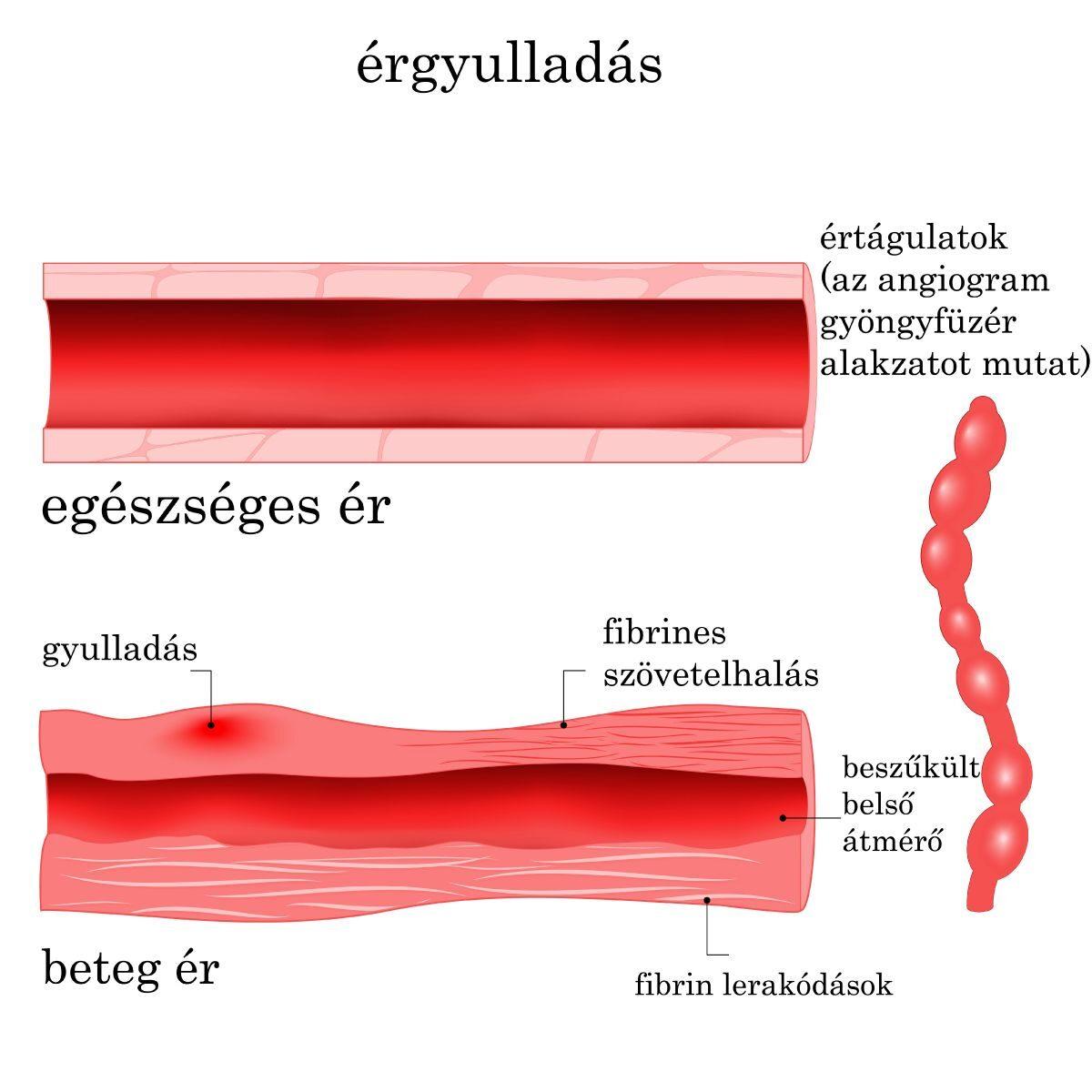 vasculitis kezelés látása