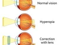 veleszületett myopia és hyperopia)