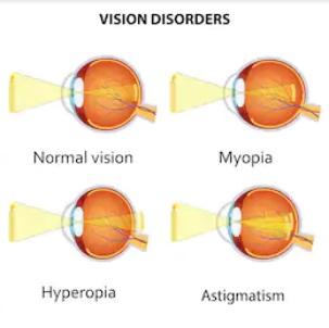 Hogyan lehet ellenőrizni a hiperopia látását? - Tünetek - September