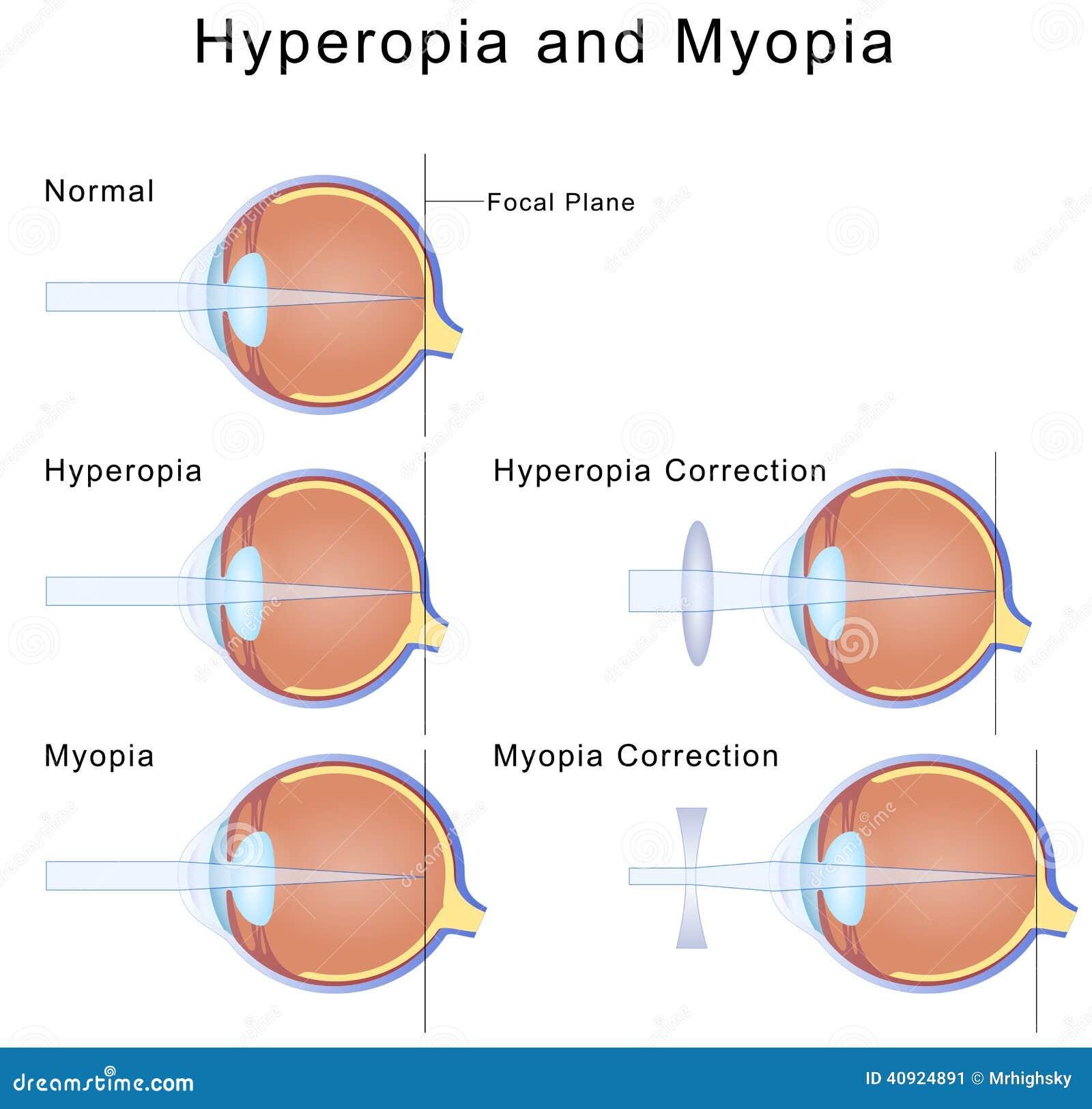 asztigmatizmus myopia hyperopia