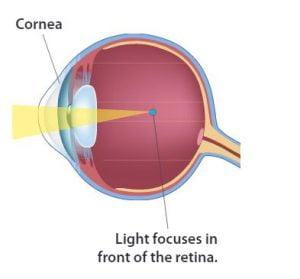 miért temetik a szemüket a látás ellenőrzésénél