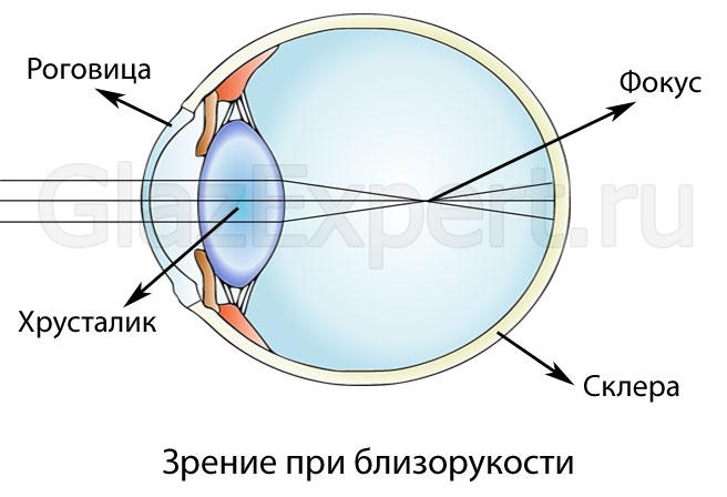milyen látási problémák miatt
