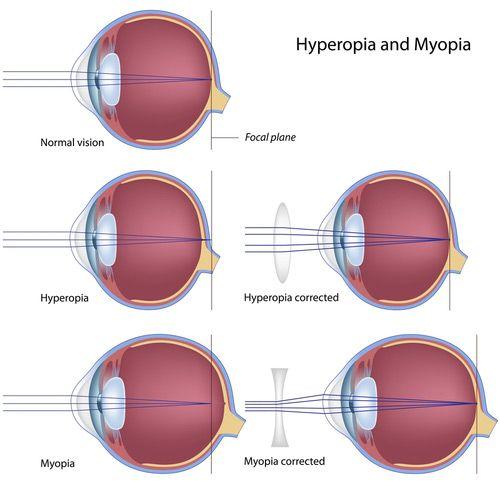 látásélesség myopia és hyperopia)