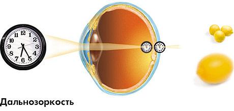 látási tesztek a lehetséges látás határa