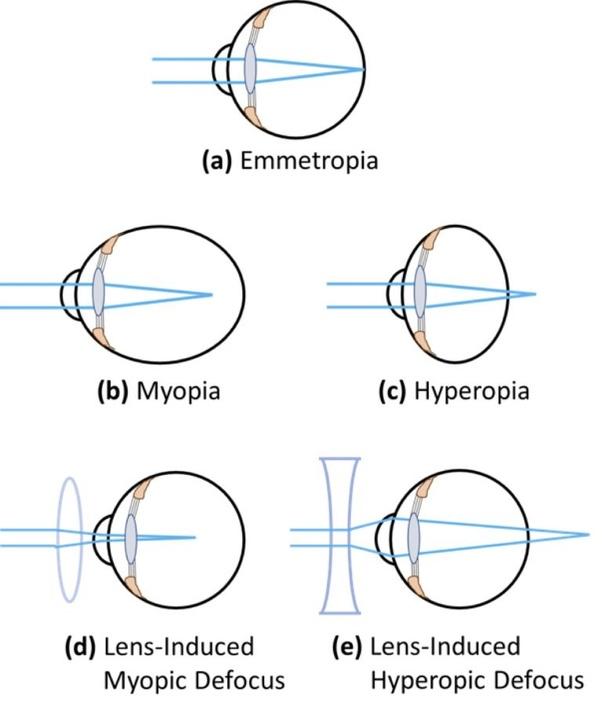 amikor mind a myopia, mind a hyperopia)