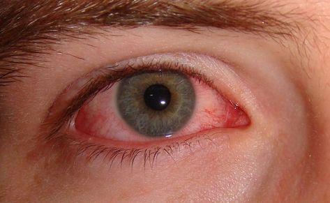 hogyan lehet helyreállítani a szem hiperópiás gyakorlatait
