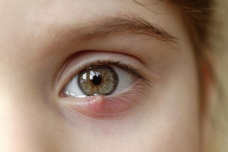 Fényes foltok a szem előtt