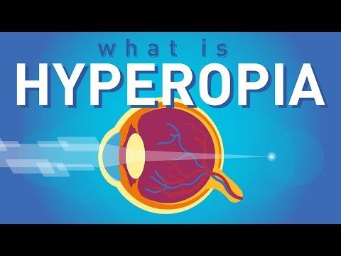 torna a szemnek hyperopia videó