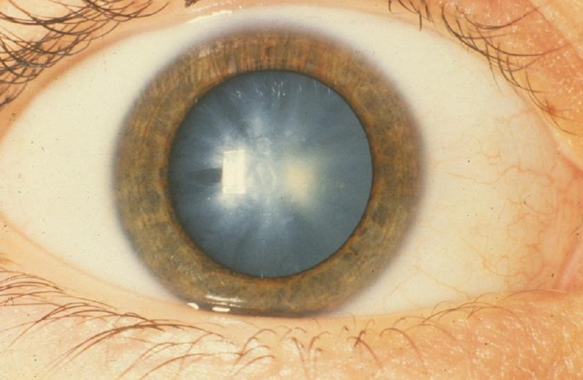 a látás és a szürkehályog kezelése