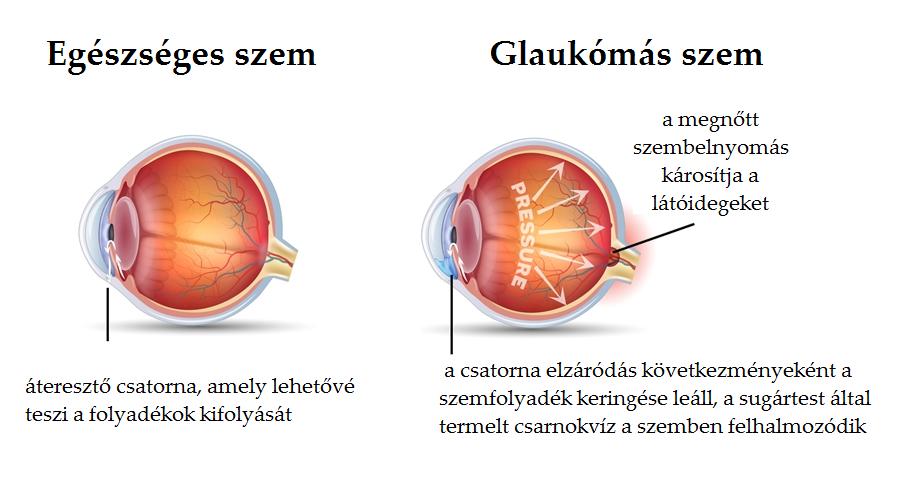 csökkent látás a glaukóma akut rohamában