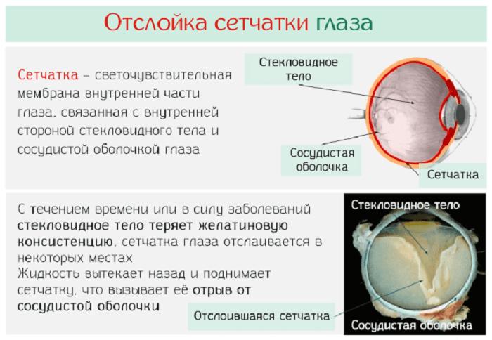 gyógyszerek a látás okuwaite és)