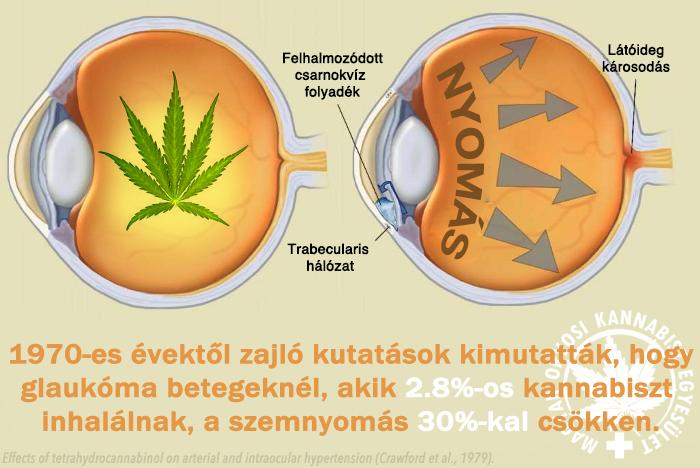 javítja a látást glaukómában két dioptriát látni