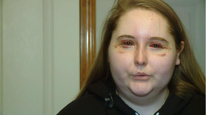 az egyik szem elvesztette a látását