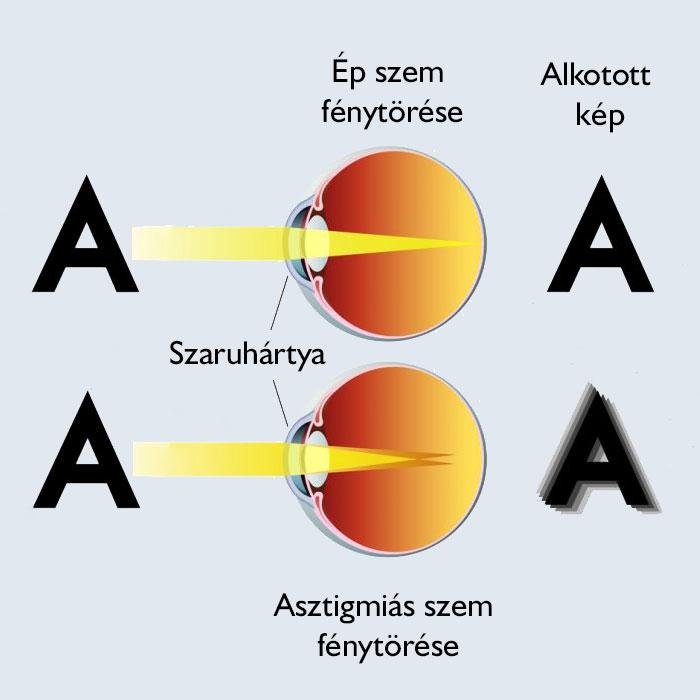 Alakú látás. A szem anatómiája