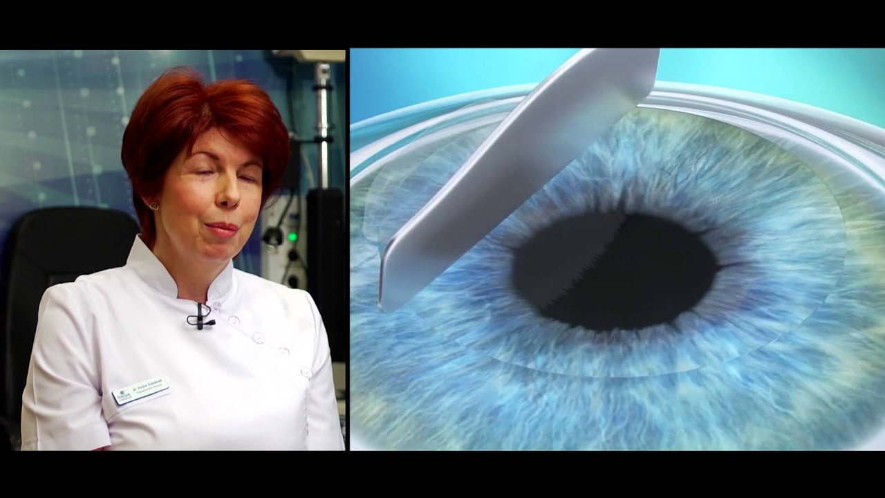 Látványos videó: Így néz ki a lézeres szemműtét
