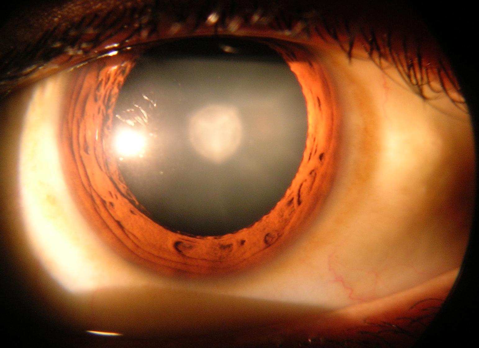 Kettős látás és szúró fájdalom szürkehályog műtét után - A szem betegségei