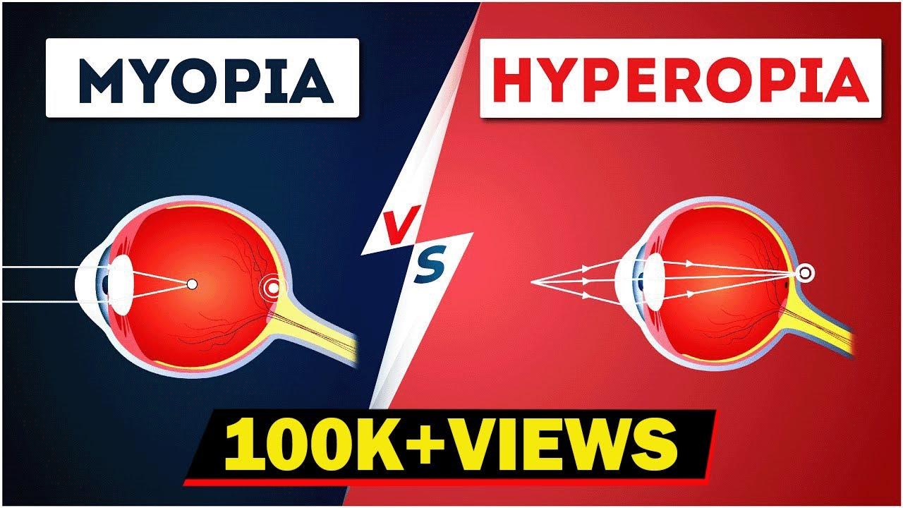 Rövidlátás a bal szemben és hyperopia a jobb szemben