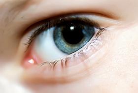a szem megerőltetése)