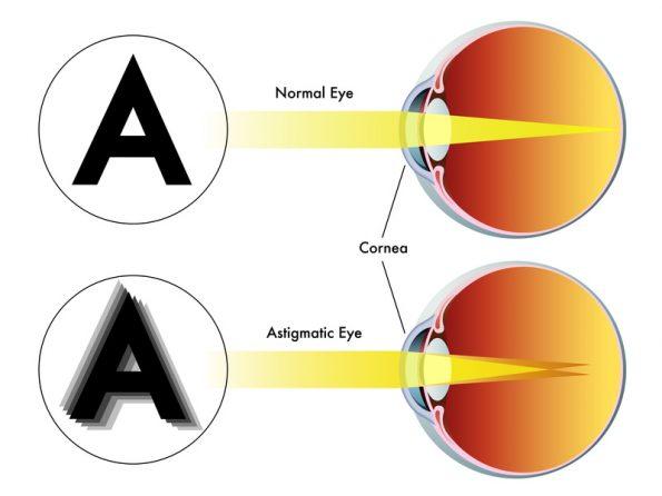 ha a látás romlott szem gyakorlatok rövidlátás