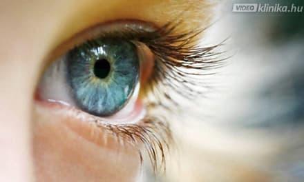 látás és szürkehályog